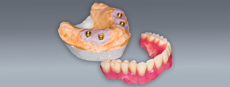implant-denture-solutions