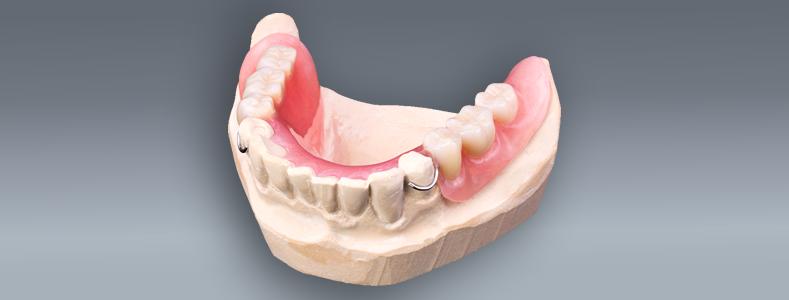acrylic-partial-dentures