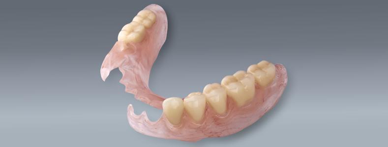 flexible-partial-dentures