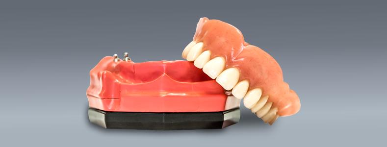 implant-retained-dentures
