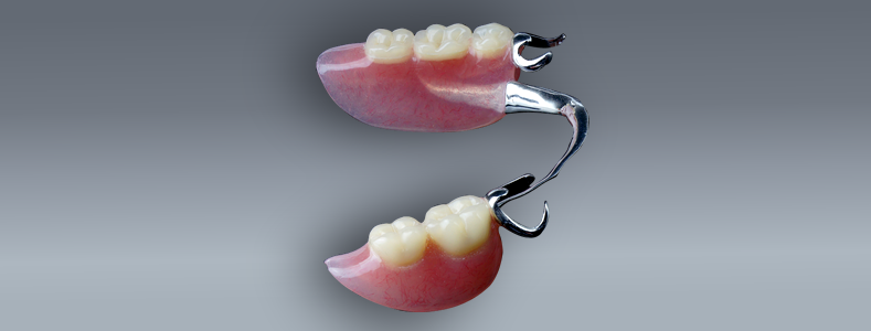 removable-cast-partial-dentures