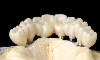 Anchoring a Denture With Dental Implants - South Calgary Dentures - Dentures and Implants Calgary