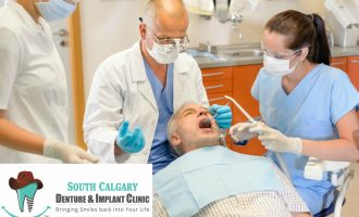 What You Need to Know About Denture Implants - South Calgary Dentures and Implants Clinic - Dentures and Implants Calgary